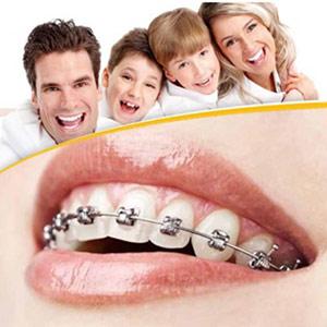 Tökéletes fogsor: fogszabályozó egy fogívre